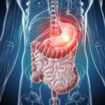 Helicobacter pylori, una bacteria que debemos combatir