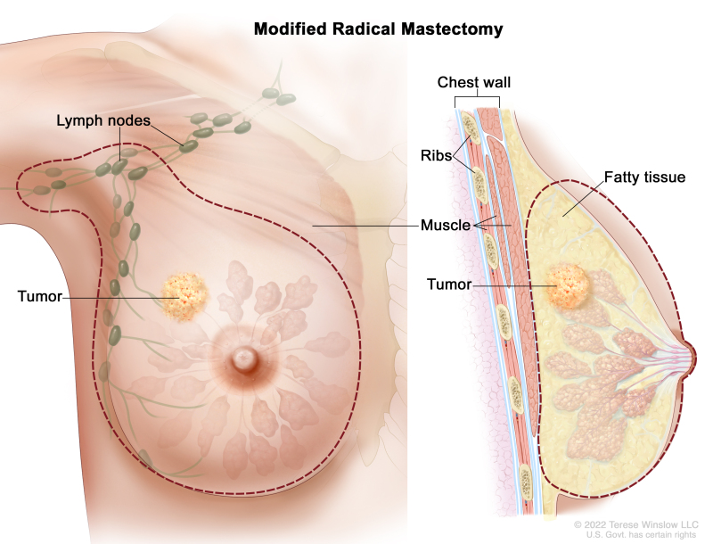 Breast Cancer Treatment During Pregnancy (PDQ®) - PDQ Cancer
