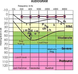 Audiogram Chart
