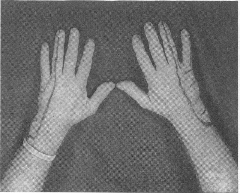Bilateral Ulnar-Nerve Palsy NEJM