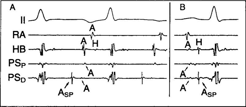 Treatment of Supraventricular Tachycardia Due to Atrioventricular