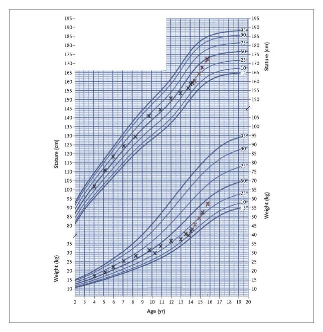 Case 3-2005 \u2014 A 14-Year-Old Boy with Recent Slowing of Growth and - boys growth chart