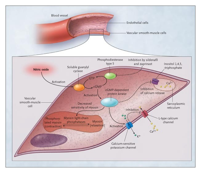 Inhaled Nitric Oxide Therapy in Adults NEJM