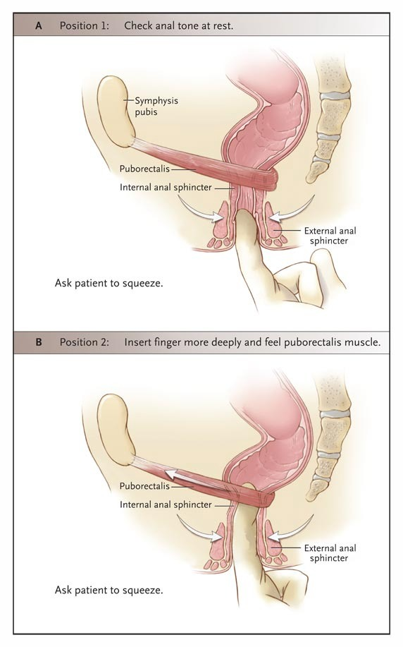 Fecal Incontinence in Adults NEJM