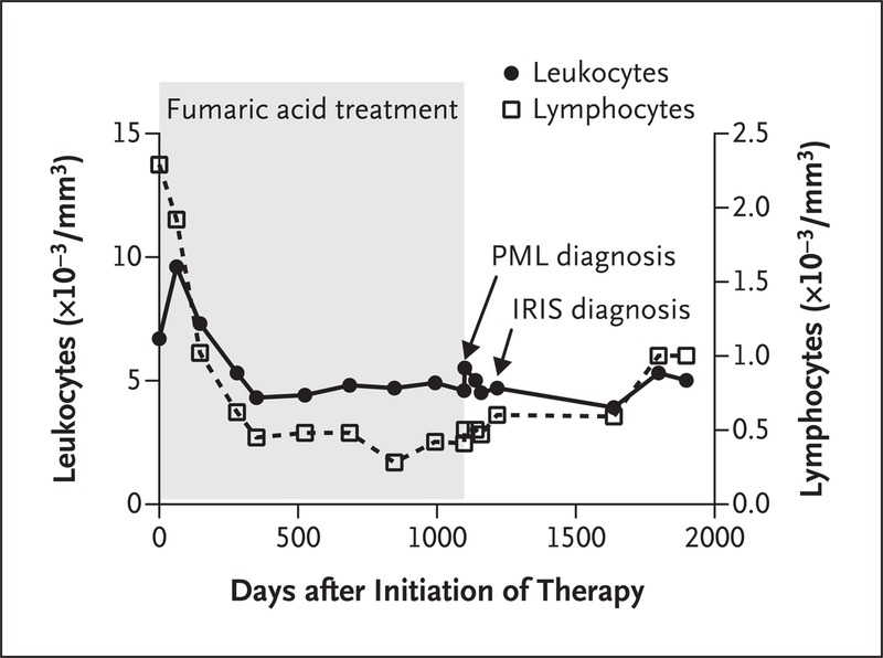 PML in a Patient Treated with Fumaric Acid NEJM