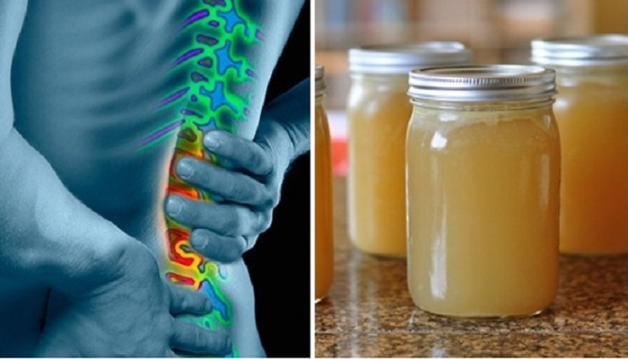 remedy for joint pain-Netmarkers