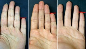 Your Little Finger can Say a Lot about Your personality!