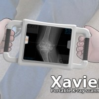xavier-portable-x-ray-by-danwei-ye3