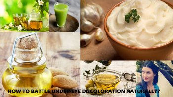 How to Fight Under-Eye Discoloration Naturally?, Beauty Tips, Dark Circles Cure