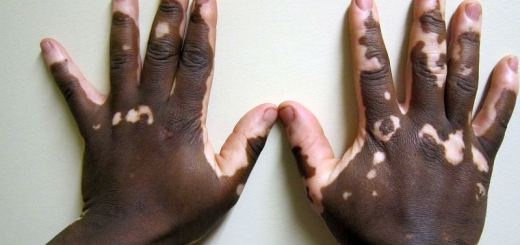 home remedies for white spots on skin_New_Love_Times