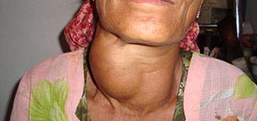 home remedies for hyperthyroidism_New_Love_Times