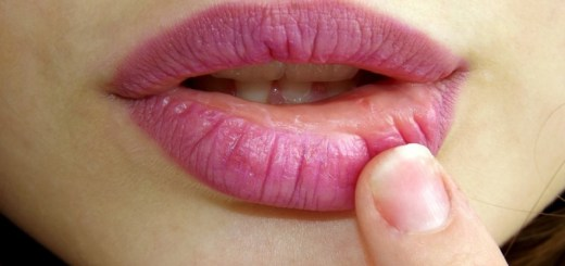 home remedies for pink lips_New_Love_Times