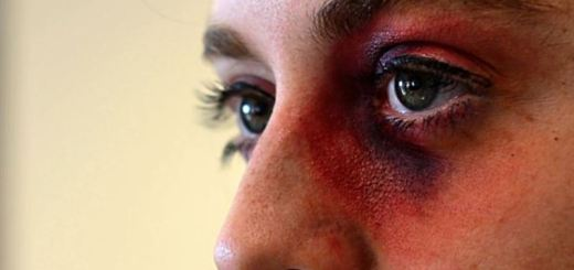 home remedies for black eyes_new_love_times