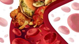 bigstock-Cholesterol-Blocked-Artery-62002319