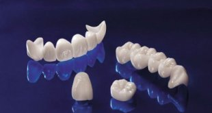 400x266xAll-Ceramic-Zirconia1.jpg.pagespeed.ic.LW6PTonJKN