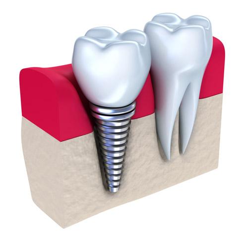 trong-rang-implant-chi-trong-1-nga3343233333