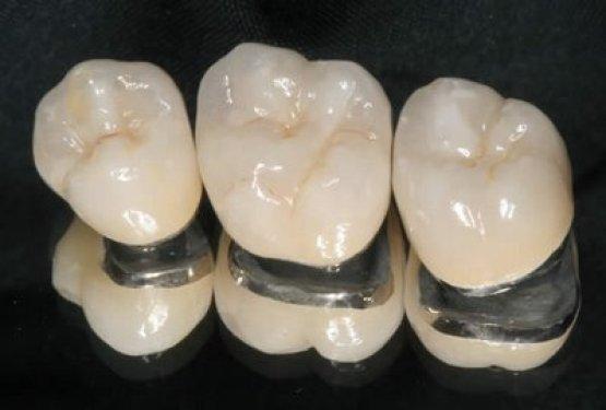 Bị mất 1 răng