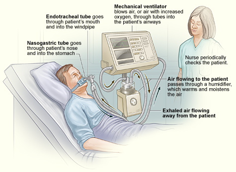 Ventilator Ventilator Support National Heart Lung And