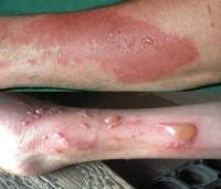 Rug Burn Infection Symptoms - Rugs Ideas