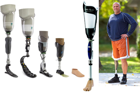 Services Provided Northern Orthopedic Laboratory