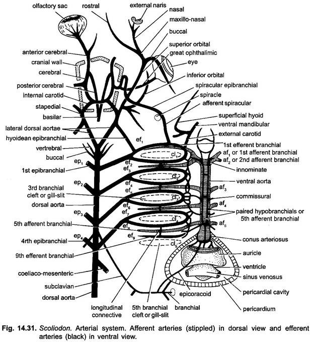 Arterial Vascular Diagrams