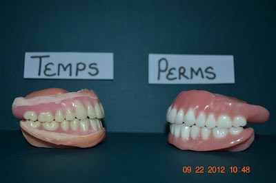 Temporary vs permanent dentures iweardentures now for the difference between my temps and perms for one you will notice the the gums are molded around the teeth much better they look more realistic solutioingenieria Image collections