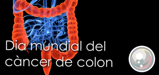 Perla-CancerColon