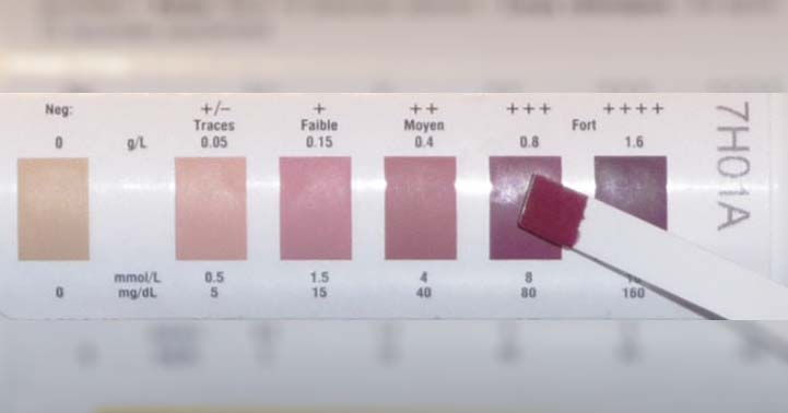 Measuring Ketosis With Ketone Test Strips Are They Accurate?