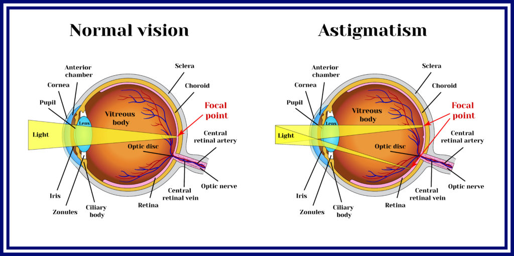 An Overview of LASIK Surgery for Astigmatism - Nvision