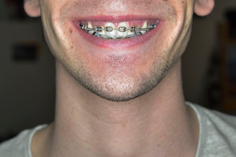 College of Dentistry speeds up teeth movement, braces process
