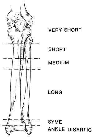 Fig 18A-8 Levels of transtibial amputation T OP Digital
