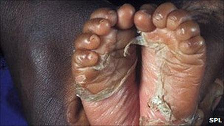 Sífilis despelando pés do bebê