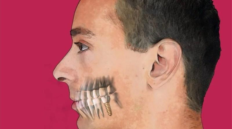 Implantología Actual 23