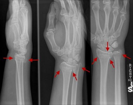 Fractured Ulna And Radius