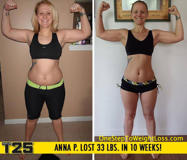 Bmi 37 Weight Loss Surgery Bmi and weight loss surgery