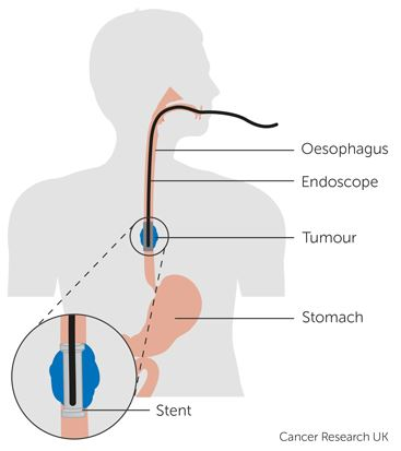 All about Oesophageal Stents