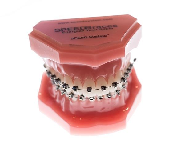 Orthodontic Appliances Orthodontic Clinic Beaumont