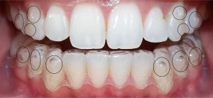 invisalign-attachments