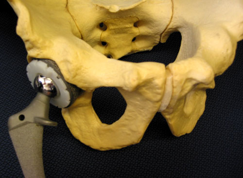 What is Hip Replacement? A Review of Total Hip Arthroplasty UW