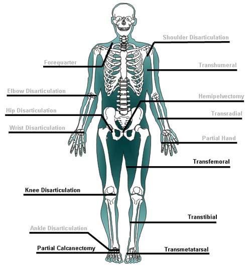 Videos UW Orthopaedics and Sports Medicine, Seattle