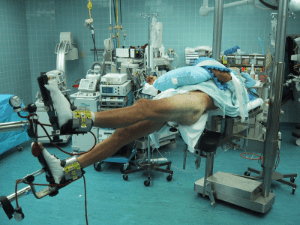 Surgical Management Of Femoral Neck Fractures
