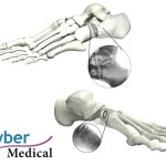 TyWedge http://tybermedical.com (PRNewsFoto/Tyber Medical, LLC)