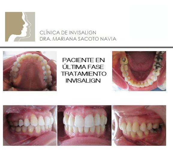 Clínica Mariana Sacoto Navia expertos en Ortodoncia Digital casos pacientes tratados despues