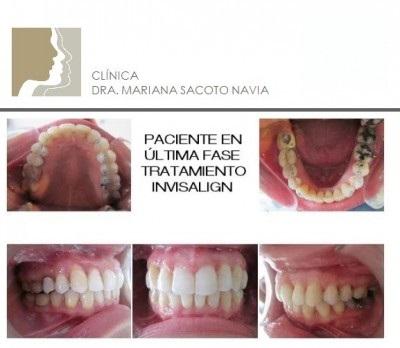 caso ortodoncia invisalign Mariana Sacoto
