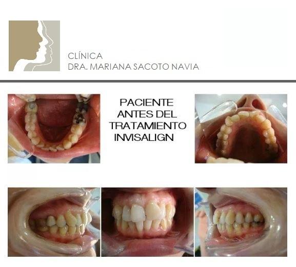 casos-tratados-Doctora-Mariana-Sacoto-Navia-INICIO ortodoncia