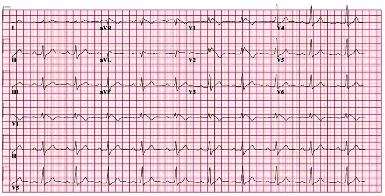 ECG - Question 14 (brugada syndrome)
