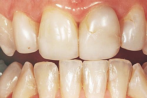 Failure of Dental Restorations