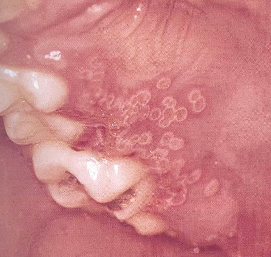 Intraoral recurrent herpes clinical features in immunocompetent patient 1