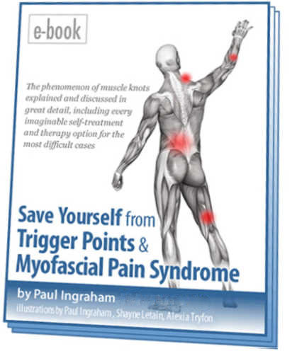 The Complete Guide to Trigger Points  Myofascial Pain (2018)