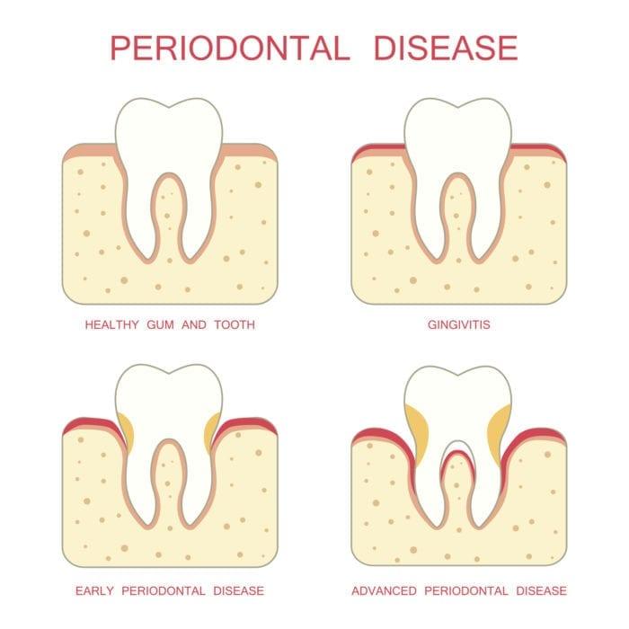 Gum Disease Indianapolis IN Gingivitis Periodontitis
